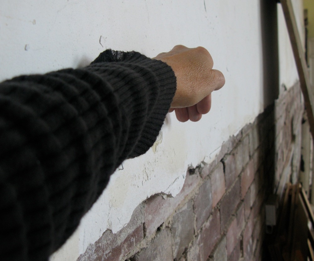 arm-wall-cast